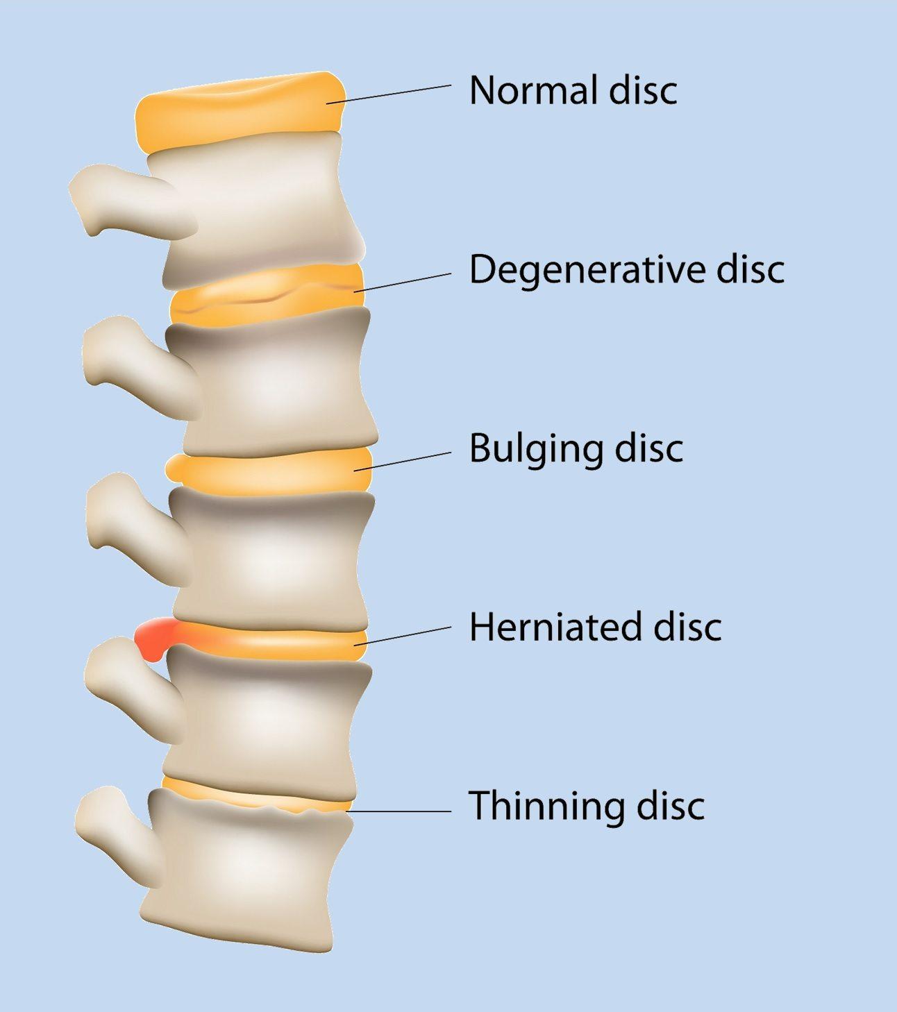 Degenerative disc disease kalra brain and spine