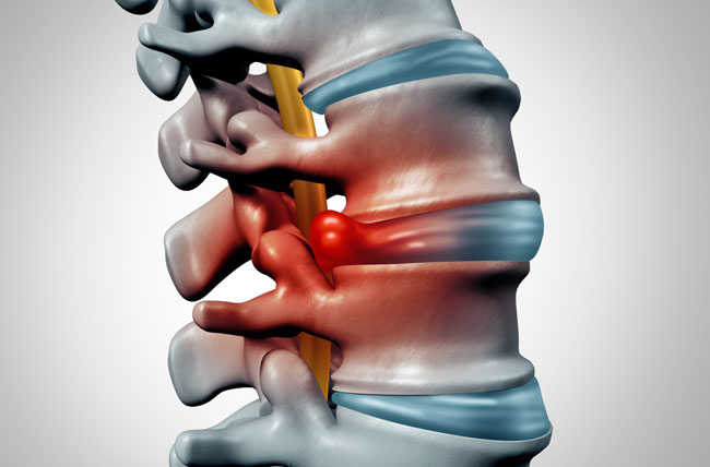 Herniated Disc kalra brain and spine